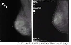Traditional X-ray mammogram image (left) and digital mammogram image (right) of the same breast.